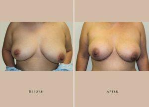 breast breast augmentation 1372436266591