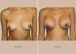 breast breast augmentation 1372437619299