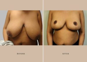 breast breast reduction 1338219071676.1.1