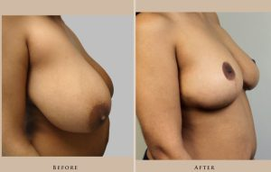 breast breast reduction 1338219201586