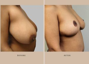 breast breast reduction 1338219201586.1