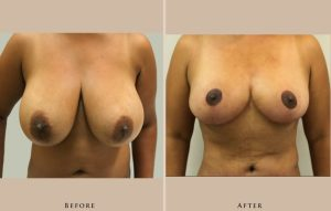 breast breast reduction 1387302991646