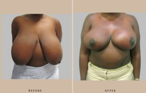 breast breast reduction 1446837600608