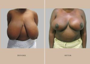 breast breast reduction 1446837600608.1.1
