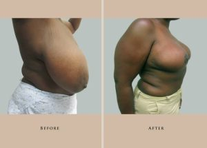breast breast reduction 1446837676439.1