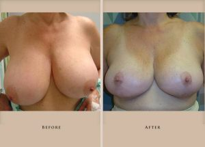 breast reduction p02 front lg1