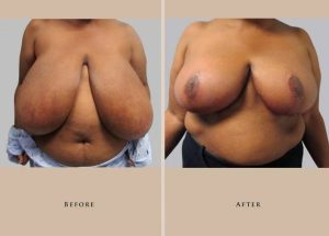 breast reduction p0intro front lg1.1